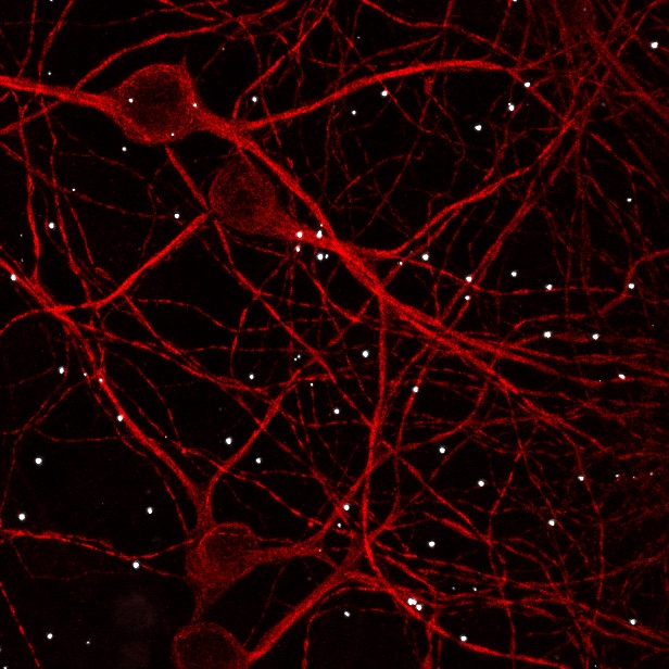 In this image, neurons are in red. Each bright spot indicates an interaction between the NMDA receptor and ZnT1